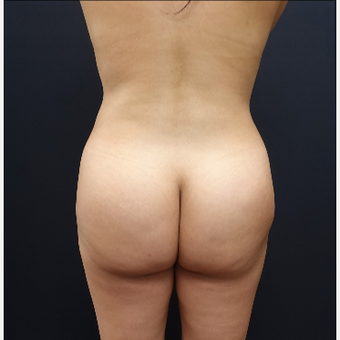 25-34 year old woman treated with Fat Transfer before 3286417