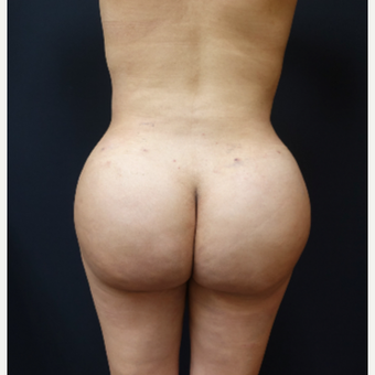 25-34 year old woman treated with Fat Transfer after 3286417