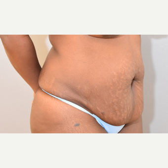 38 year old woman treated with Tummy Tuck before 3582276