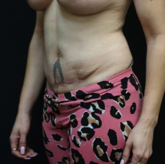 37 year old woman treated with Tummy Tuck after 3076606