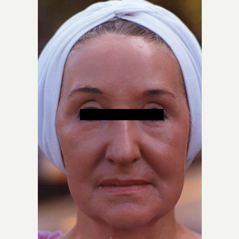 65-74 year old woman treated with Chemical Peel after 3543556