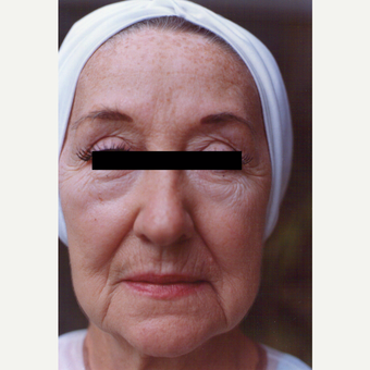 65-74 year old woman treated with Chemical Peel before 3543556
