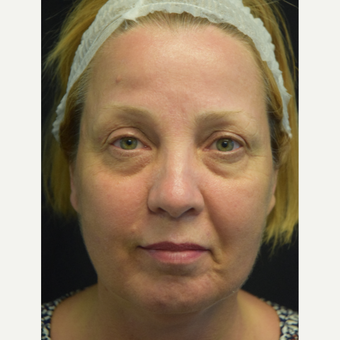 45-54 year old woman treated with Eyelid Surgery and Eye Bags Treatment before 3179558