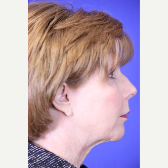 59 year old woman treated with Neck Lift before 3419677