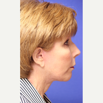 59 year old woman treated with Neck Lift after 3419677