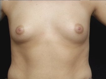 26 Year Old For Breast Augmentation before 1173223
