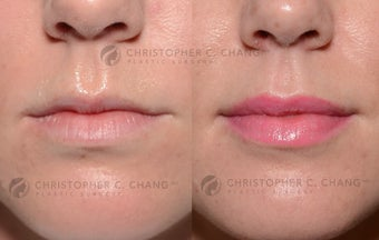 25-34 year old woman treated with Lip Augmentation before 3626775