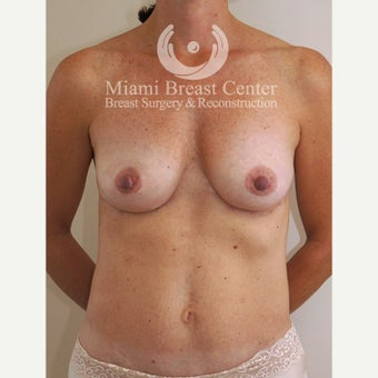 Woman treated with Breast Implant Removal after 2217593