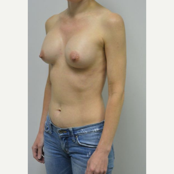 45-54 year old woman treated with Breast Implants who wants a natural look after 3604030