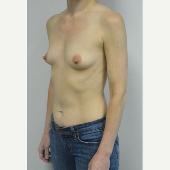 45-54 year old woman treated with Breast Implants who wants a natural look before 3604030