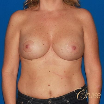 41 yr old has an Anchor Breast Lift with Implants after 3501277
