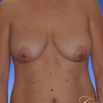 41 yr old has an Anchor Breast Lift with Implants before 3501277