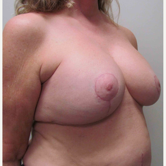 Breast Lift with Implants for this 58 Year Old Woman after 3043303