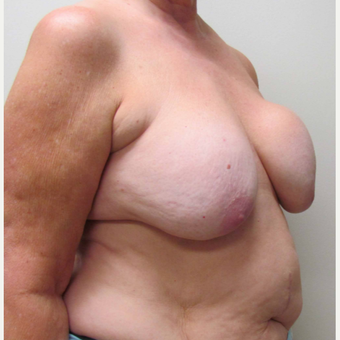 Breast Lift with Implants for this 58 Year Old Woman before 3043303