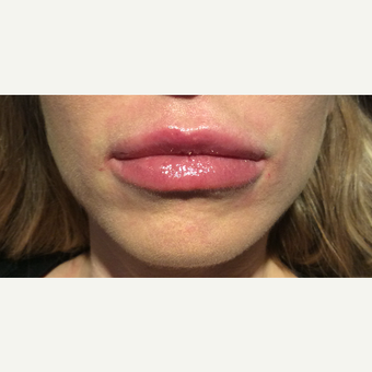 25-34 year old woman treated with Restylane Silk after 3756290