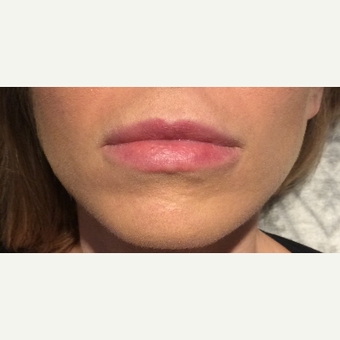 25-34 year old woman treated with Restylane Silk before 3756290