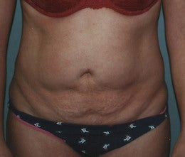 44-Year Old Female Tummy Tuck before 665096