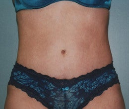 44-Year Old Female Tummy Tuck after 665096