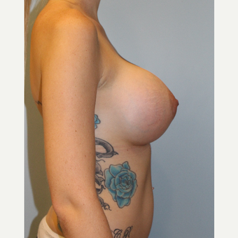 25-34 year old woman treated with Breast Augmentation after 3077091