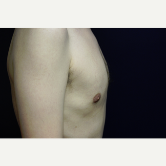 31 year old man treated for gynecomastia with liposuction after 3419144