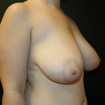 35-44 year old woman treated with Breast Lift before 3566177