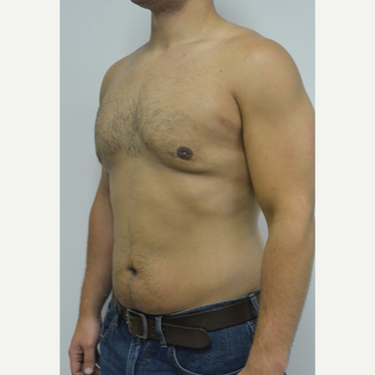 25-34 year old man treated with Male Breast Reduction after 3070580