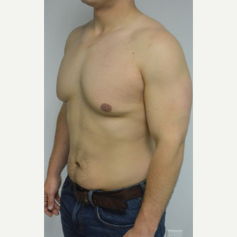 25-34 year old man treated with Male Breast Reduction before 3070580