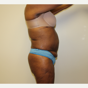 Tummy Tuck before 3417706