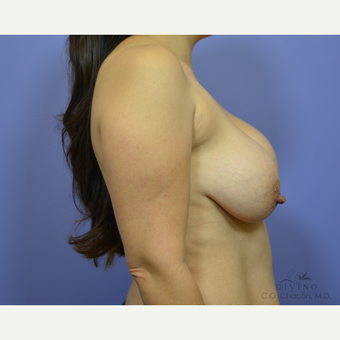 35-44 year old woman treated with Breast Lift before 3420118