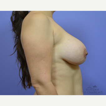35-44 year old woman treated with Breast Lift after 3420118