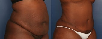 35-44 year old woman treated with Tummy Tuck after 3699183