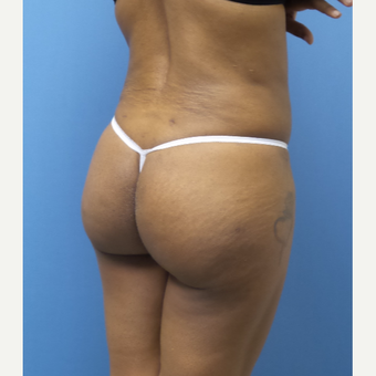45-54 year old woman treated with Brazilian Butt Lift after 3377289