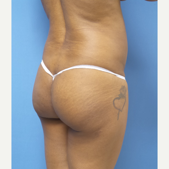 45-54 year old woman treated with Brazilian Butt Lift before 3377289