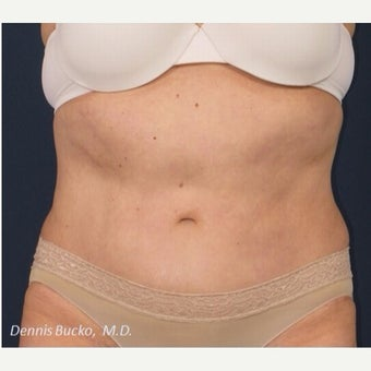 55-64 year old woman treated with Tummy Tuck after 2252094