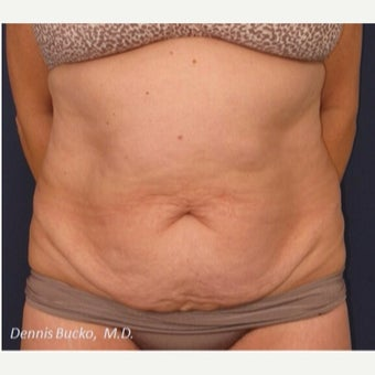 55-64 year old woman treated with Tummy Tuck before 2252094