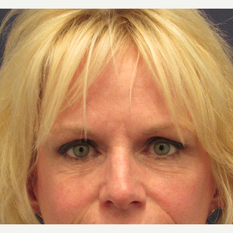 55-64 year old woman treated with Eyelid Surgery after 3702888