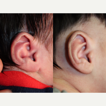 1 month old child treated with EarWell Appliance. after 3499460