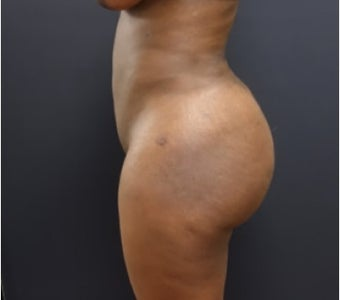 35-44 year old woman treated with Brazilian Butt Lift after 3200903