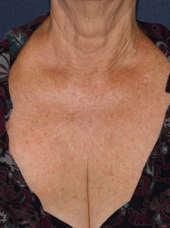 66 year old female chest treated with Fraxel Repair for wrinkles, texture, sun damage after 1131435