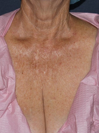 66 year old female chest treated with Fraxel Repair for wrinkles, texture, sun damage before 1131435