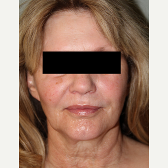 45-54 year old woman treated with Facelift before 3371020