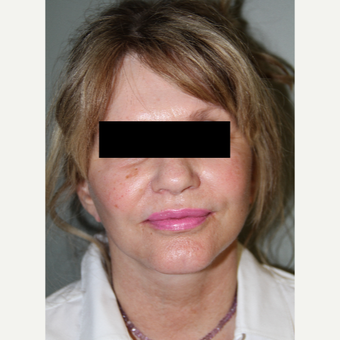 45-54 year old woman treated with Facelift after 3371020