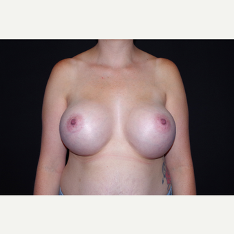 25-34 year old woman treated with Breast Implants after 3741750