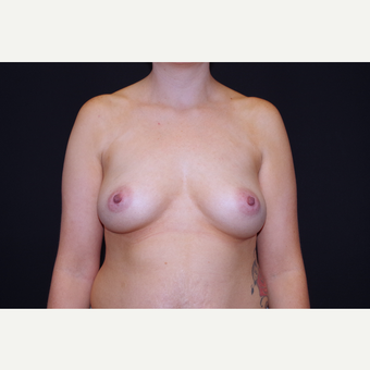 25-34 year old woman treated with Breast Implants before 3741750