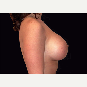 25-34 year old woman treated with Breast Lift with Implants after 3027940