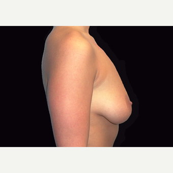 25-34 year old woman treated with Breast Lift with Implants before 3027940