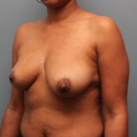 Hybrid Breast Implants Used with Breast Augmentation Surgery before 3390737