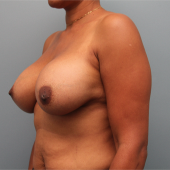 Hybrid Breast Implants Used with Breast Augmentation Surgery after 3390737