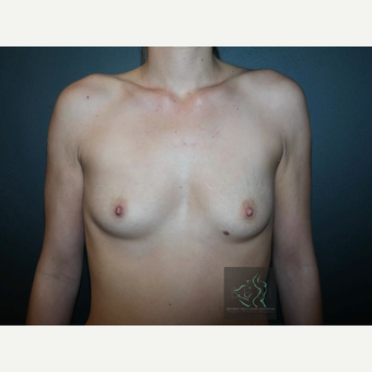 25-34 year old woman treated with Mentor Breast Implants before 3726035