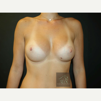 25-34 year old woman treated with Mentor Breast Implants after 3726035